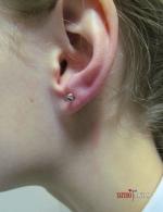 Пирсинг мочки уха с конусным лабреттом