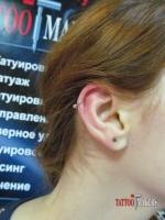 Прокол хрящика уха с установкой кольца.