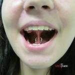 Пирсинг уздечки под языком