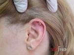 Пирсинг хрящика верхней части уха