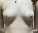 Пирсинг груди