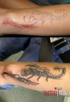 Перекрытие шрама татуировкой скорпиона и узором.